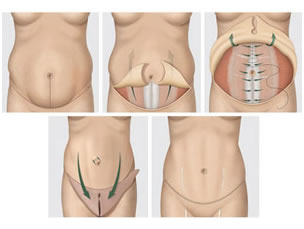 Cicatriz dura por dentro abdominoplastia
